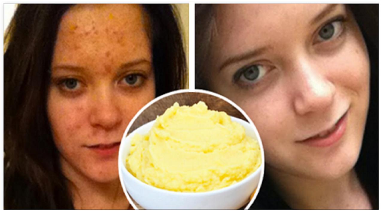 Eliminarás las marcas causadas por el acné, con esta mascarilla natural