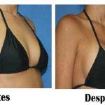 El tamaño de tus senos aumentará rapidamente siguiendo estos 5 consejos