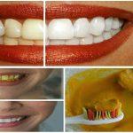Blanquea tus dientes en tan sólo unos minutos con esta increíble receta natural