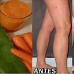 Elimina las varices de tus piernas con ayuda de esta receta 100% natural