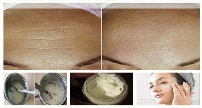 Elimina todas las arrugas en 1 semana con ayuda de esta crema casera