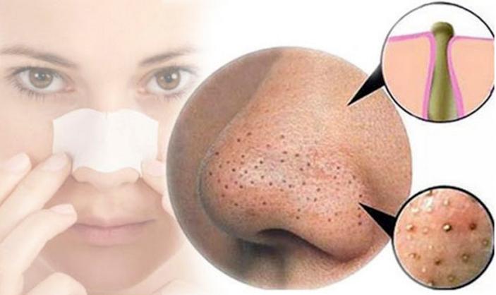 Las espinillas y los puntos negros de tu nariz se eliminarán en 25 minutos haciendo esto