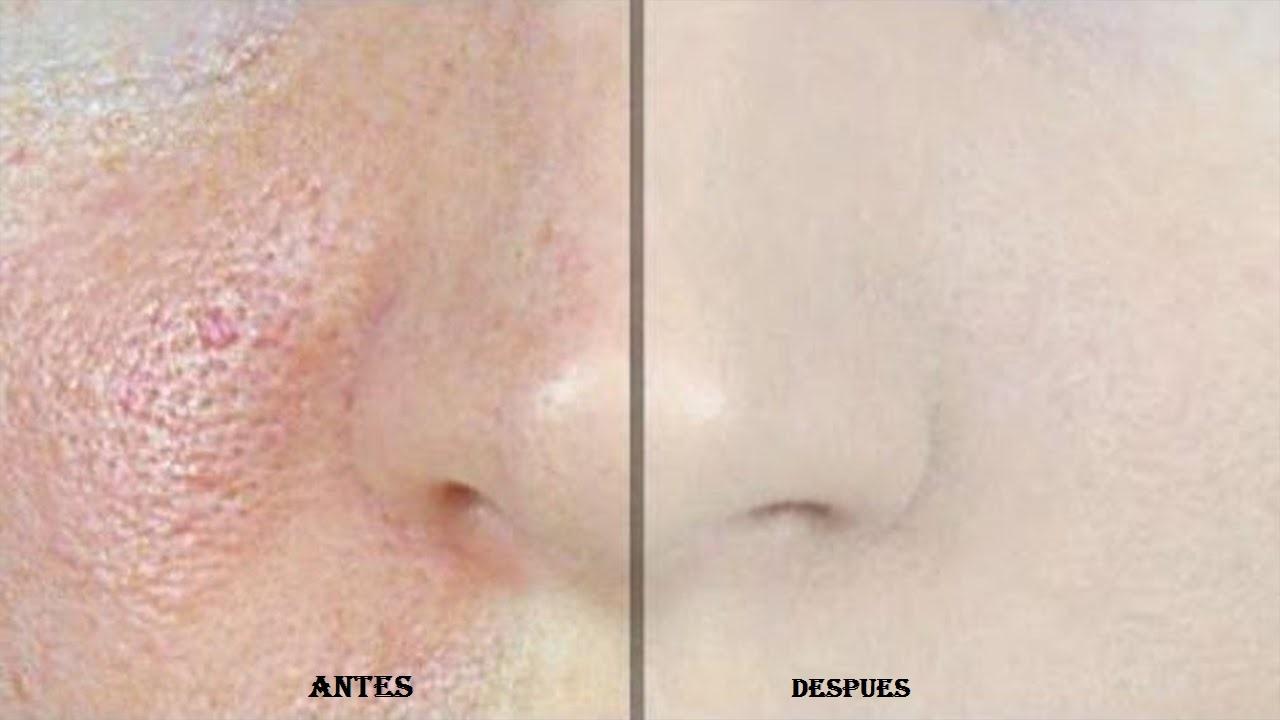 Este remedio elimina los poros de la cara en segundos... Quedarás sorprendida