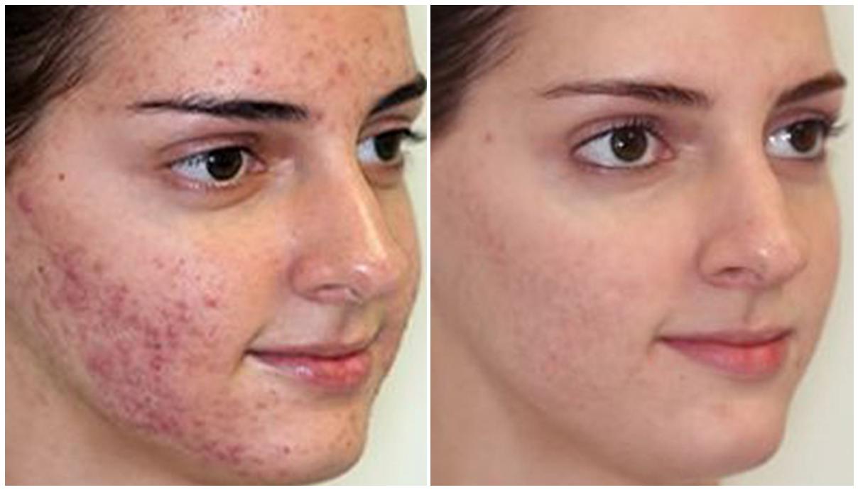 Esta es la mejor y más sencilla solución para eliminar el acné de manera natural