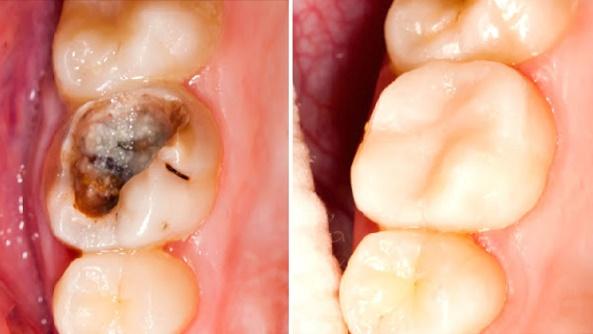Elimina las caries y blanquea tus dientes en tan sólo 5 minutos con este remedio casero