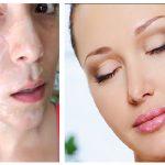 Eliminarás las manchas, las arrugas y el acné de tu piel con esta mascarilla
