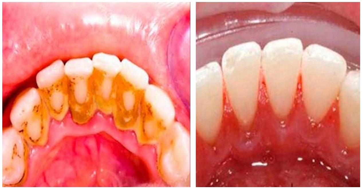 Quita el sarro de tus dientes de forma 100% natural
