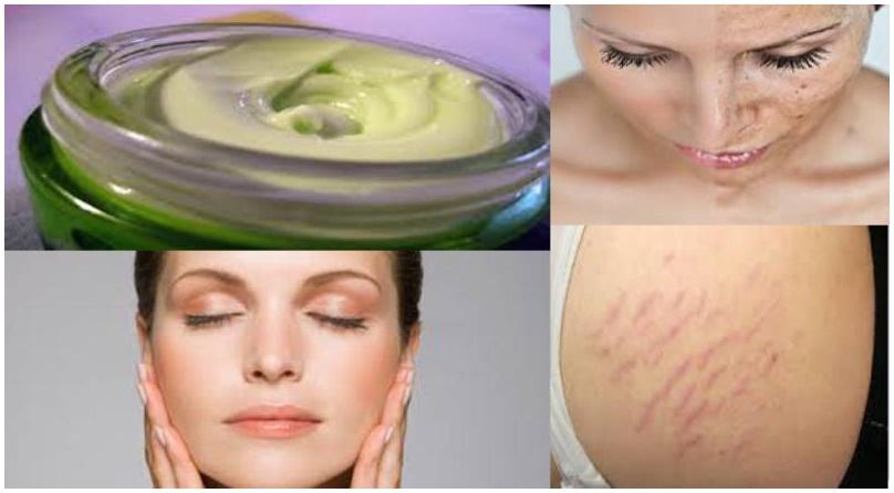 Mezcla estos 3 ingredientes y dile adiós a tus arrugas, manchas, estrías y quemaduras
