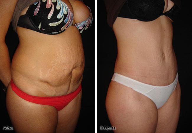 Despídete de la flacidez abdominal en tan solo 7 días con este fabuloso remedio casero