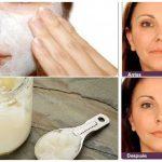 Ella utilizó esta crema durante 1 semana y el 50% de sus arrugas desapacecieron como por magia