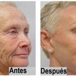 Esta mujer tiene 72 años, pero ahora luce como casi de 40 gracias a una crema de rejuvenecimiento en casa