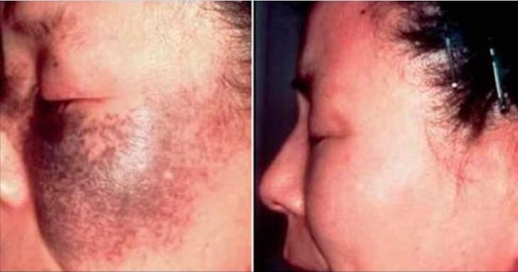 Frota esto en tu piel y en 72 horas las manchas, pecas y arrugas se desvanecerán