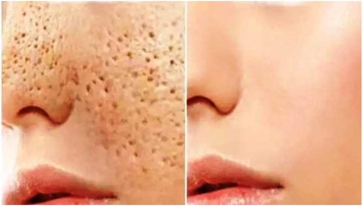 Elimina los poros abiertos de tu rostro en tan sólo 3 días con esto