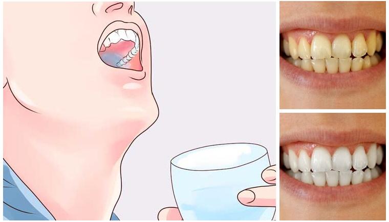 Enjuaga tus dientes por 60 segundos con esto y eliminaras el sarro, la placa y blanqueras tus dientes