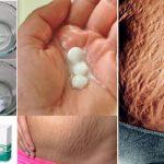 Elimina rápidamente las estrías con las aspirinas, los resultados no los podrás creer!
