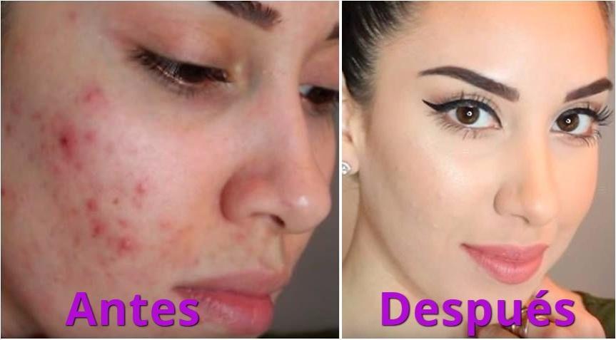 Eliminarás el acné de tu rostro usando esta mascarilla por solo 30 minutos
