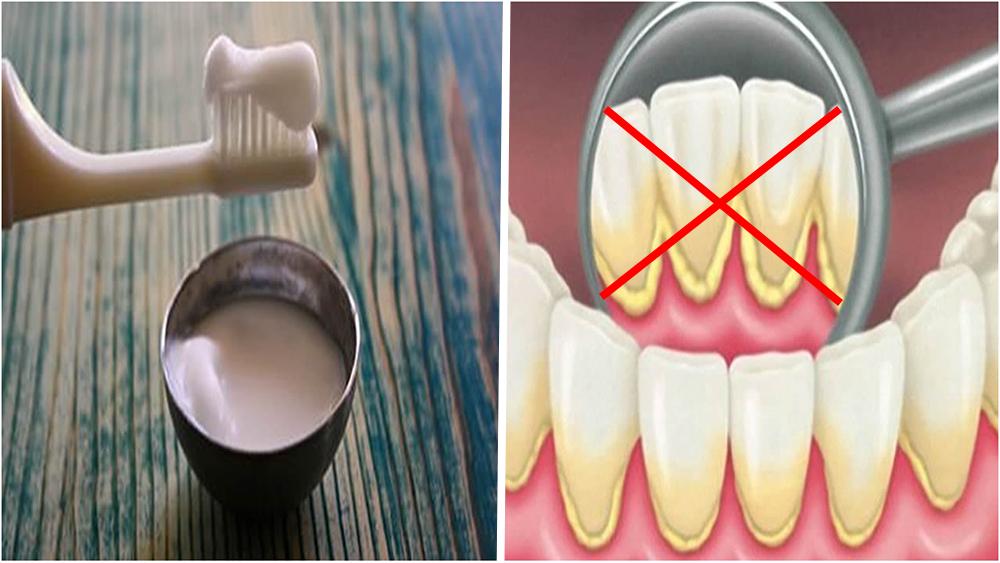 ¡Adiós a la placa en tus dientes! Desaparecela en solo 4 minutos con esta mezcla
