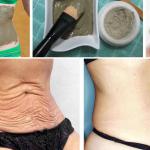 Eliminarás la flacidez de tu abdomen y piel en solo 7 días con esto