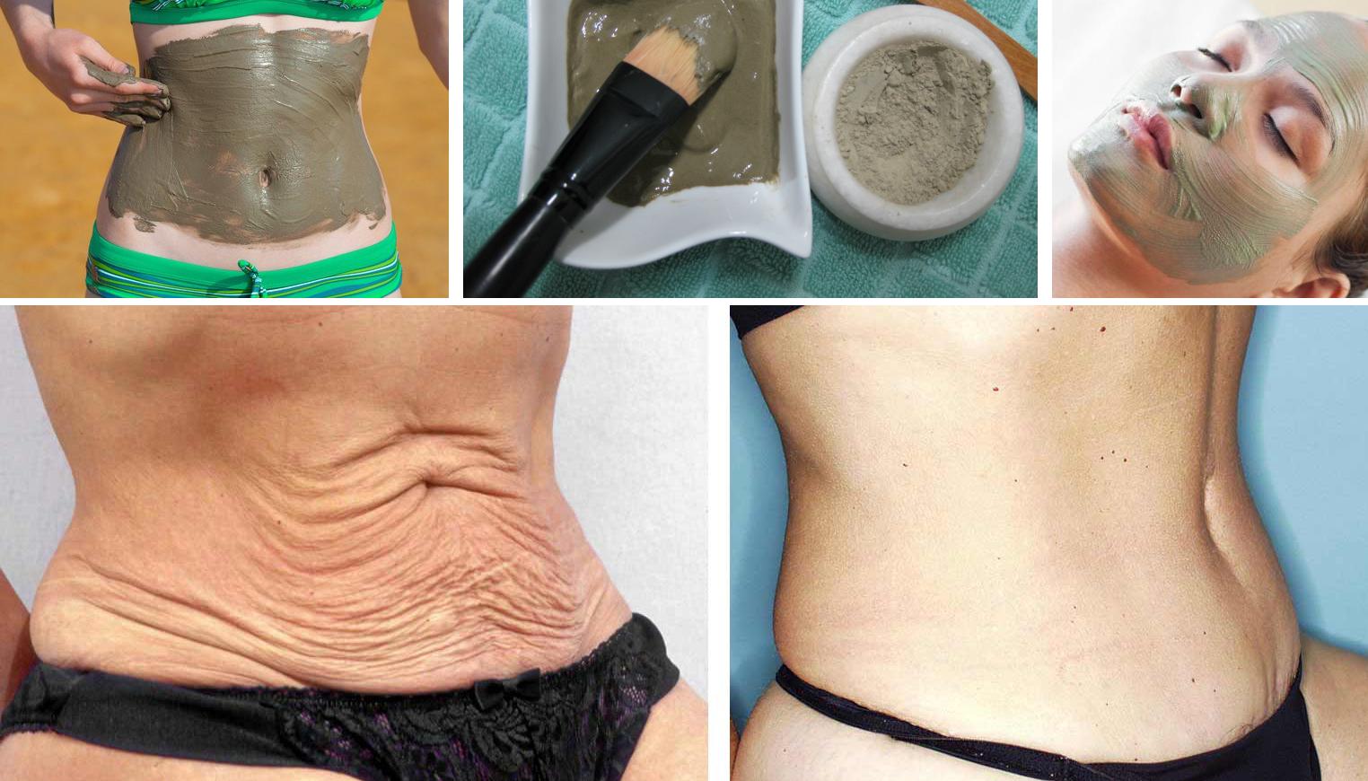 Eliminarás la flacidez de tu abdomen en solo 7 días con esto