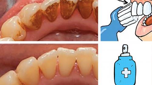 Luego de que conozcas este método para eliminar el sarro te enojarás con tu dentista por ocultártelo
