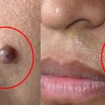 Las verrugas se eliminarán en solo 15 minutos con este truco