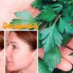 Basta con usar una hoja para eliminar las manchas y el acné de tu rostro