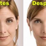 Esta mascarilla casera te ayudará a eliminar las manchas, arrugas y cicatrices de acné en unos días