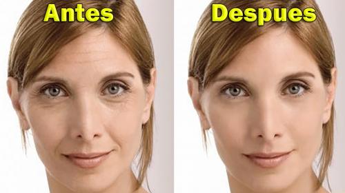 Esta mascarilla casera te ayudará a eliminar las manchas, arrugas y cicatrices de acné en unos días sin invertir demasiado tiempo ni dinero