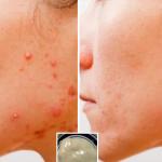 Despídete de las manchas, cicatrices y acné en solo 2 minutos con esta receta