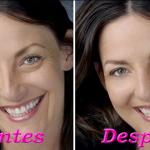 En 7 días podrás eliminar las arrugas de tu rostro con esta crema casera