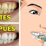 La placa dental se elimina y se blanquean los dientes en 4 minutos con este remedio natural