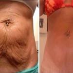 Como acabar con la flacidez sin necesidad de botox ni cirugías plásticas