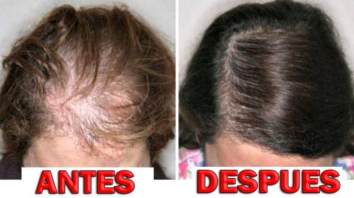 Su cabello se le caía por montones hasta que usó este remedio natural