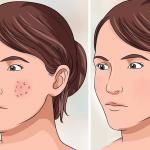 Todos los poros y manchas de tu rostro los puedes eliminar con esto