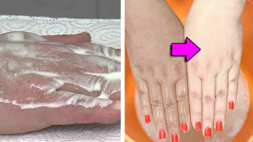 Tratamiento casero para blanquear tus manos de forma rápida y eficaz