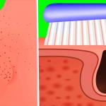 Remueve definitivamente los puntos negros en 2 minutos con tu cepillo de dientes