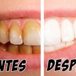 Elimina el sarro y blanquea tus dientes con esta pasta dental casera