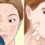 Elimina las manchas e imperfecciones de tu rostro con esta crema casera