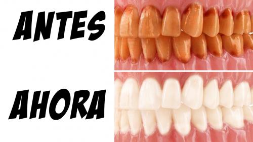 Los dentistas no quieren que sepas este truco para eliminar el sarro y blanquear los dientes