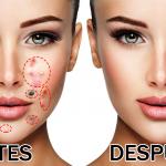 Elimina las verrugas, espinillas y lunares con estas recetas naturales