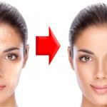 Un famoso dermatólogo nos explica como eliminar las manchas marrones de la piel