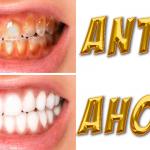 Los odontólogos están aterrados porque esta receta casera blanquea los dientes y quita el sarro