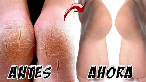 Las grietas de tus pies desaparecerán con este tratamiento casero