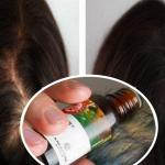 Ella tenía caída de cabello, pero recobró su cabello con este jarabe natural