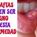 Cuidado! Si te salen aftas constantemente en los labios podrías tener esta enfermedad autoinmune