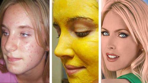 Elimina el acné y otras imperfecciones de la piel con ayuda de la cúrcuma