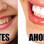 Aplique esto en mis dientes y ahora están blancos y relucientes