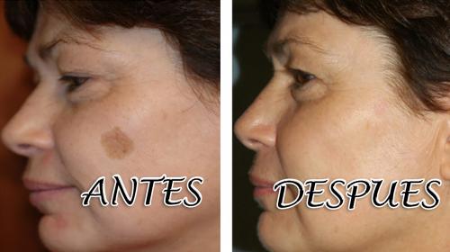 Elimina las manchas de tu rostro aplicándote este remedio casero