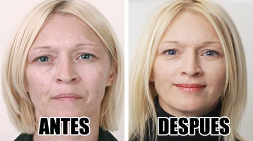 Tu rostro quedará 7 años más joven si le aplicas esta crema
