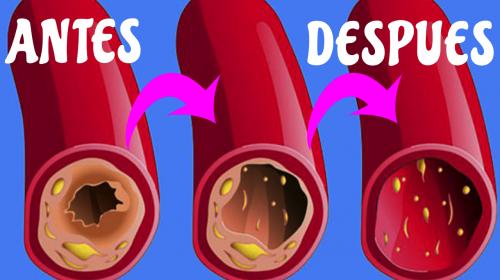 3 Ingredientes que limpiarán todas tus arterias